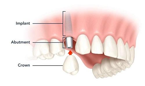 Trồng răng giả có đau không? Tìm hiểu kỹ thuật trồng-3