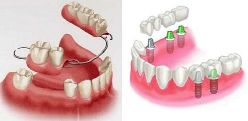 Trồng răng sứ cố định có tốt không? Tìm hiểu-2
