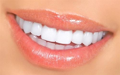 Trồng răng sứ cố định có tốt không? Tìm hiểu-3