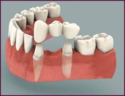 Trồng răng có nhanh không? Phụ thuộc các yếu tố nào? 3