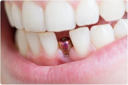 Trồng răng có nhanh không? Phụ thuộc các yếu tố nào? 4