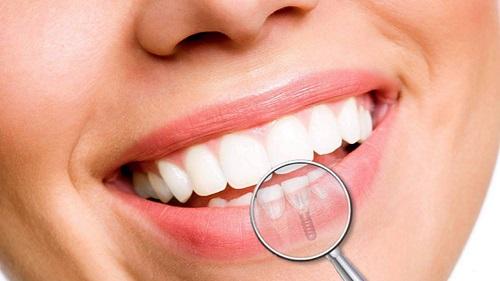 Trồng răng cửa hàm dưới - Tìm hiểu phương pháp trồng răng 4
