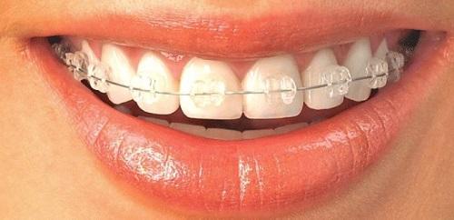 Niềng răng xong có nên tẩy trắng răng không? 1